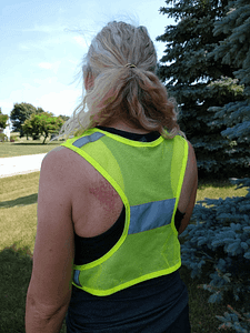recovery after a nike accident - road rash -Superficial injury after a bike accident